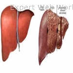 Hepatitis B cure in India with Homeopathy